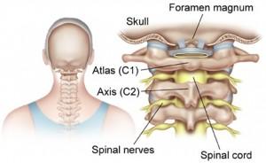 cervicale stenose klachten